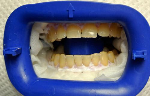 Чем отбелить зубы подростку
