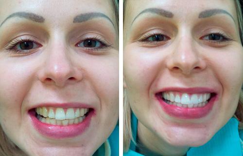 Отбеливание зубов zoom 4 - цены, отзывы о системе.