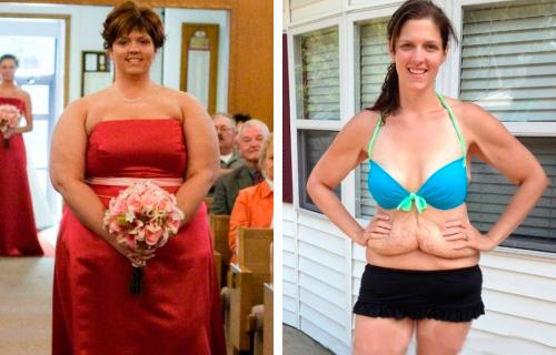 реальные истории похудения с фото до и после: