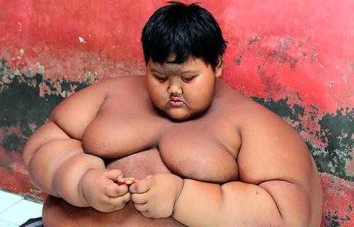 Самый толстый мальчик похудел на 76 кг