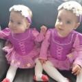 Девочка выжила в утробе благодаря сестре-близняшке