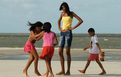 Бразильская девочка стала слишком высокой для школы